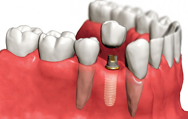 Immediate Load Dental Implants