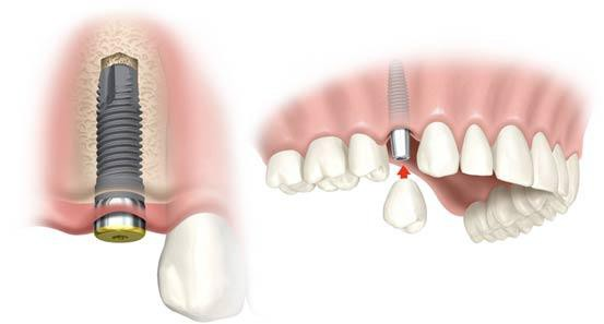 Dental Implants, All on 4 in Co Louth, Ireland - Maxillo Dundalk