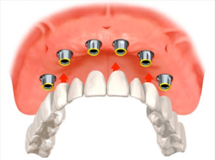 Same Day Load Dental Implants - Procedure