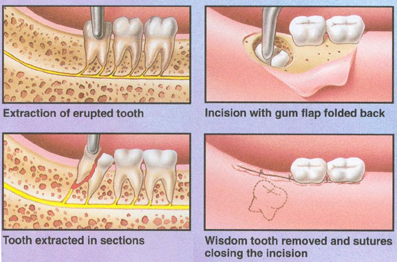 Common Reasons for removing Wisdom Teeth: